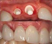 4c: zirconia implantaten met kronen