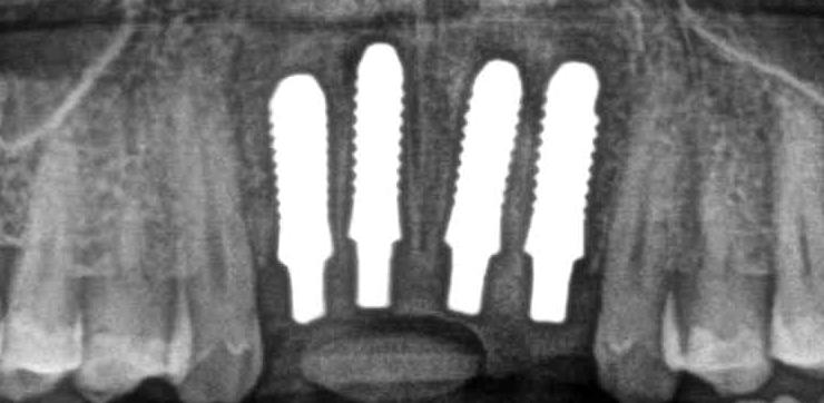 Keramische implantaten en ingroeifase