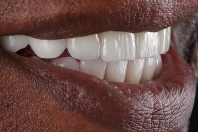 Porseleinen implantaat in situ
