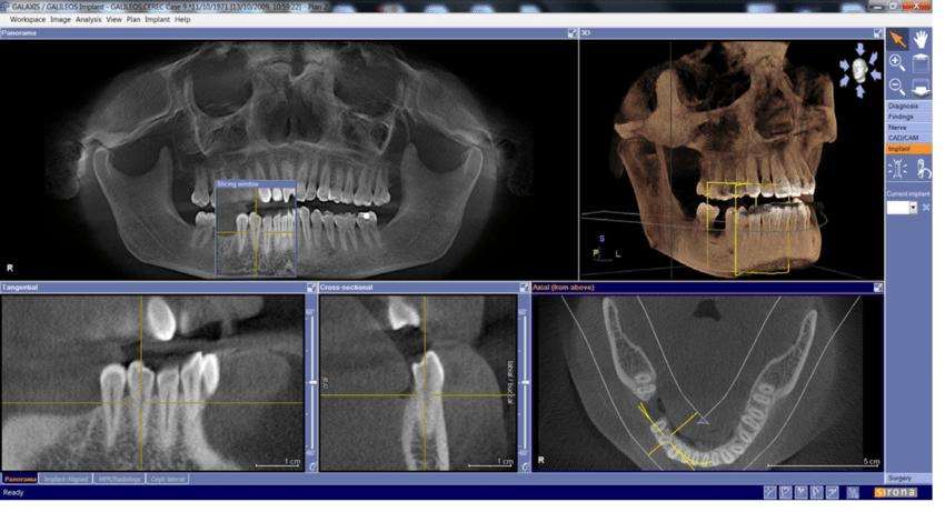 Verlengd onderzoek bij keramische implantaten