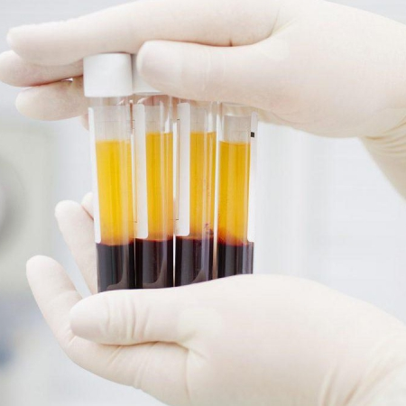 L-PRF en biologische implantaten