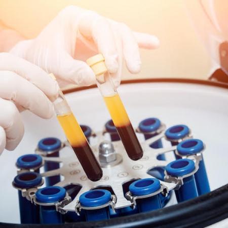 LPRF centrifuge en biologische implantaten