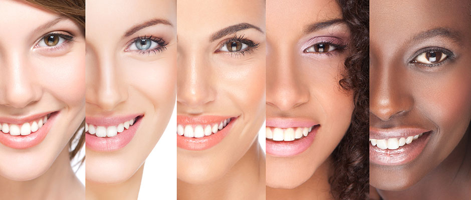 5-ladies-smiles-1