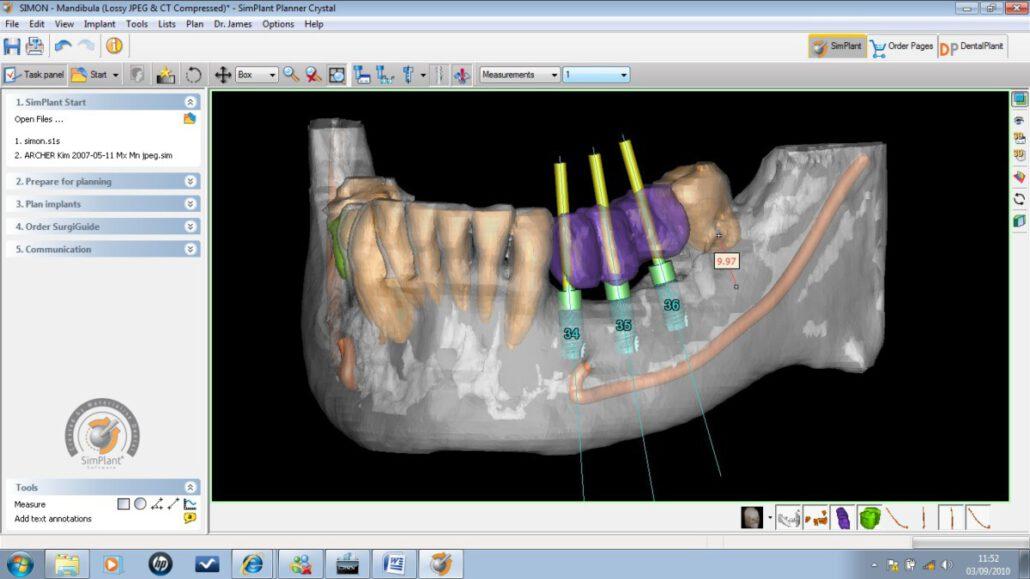 Planning implantaten