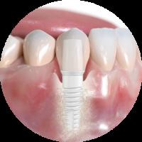 Ceramic implant