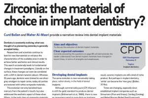 Artikel 1: zirconia implantaten